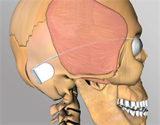 CGI Skull showing retinal implant